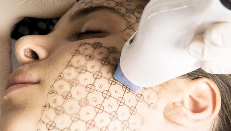 Does Skin Tightening Hurt?